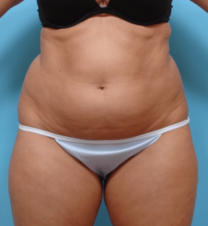 Manhattan liposuction before 6